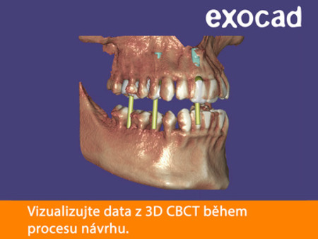 Exocad DICOM Viewer