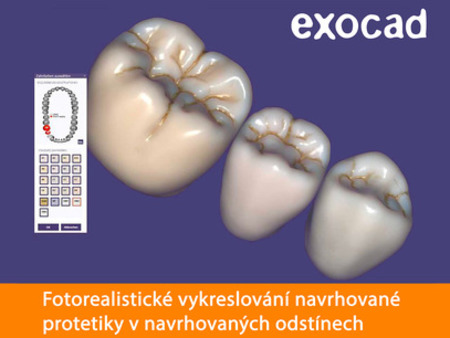 Exocad TruSmile Technology