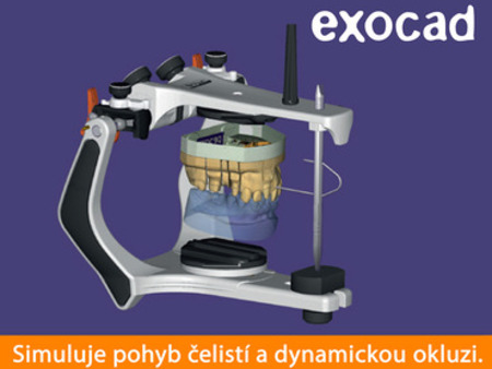 Exocad Virtual Articulator